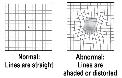 How AMD Damaged Vision
